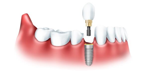 Особенности выполнения качественного протезирования зубов