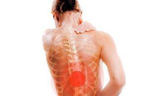 Ранние признаки и симптомы воспаления суставов позвоночника