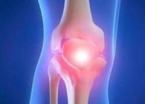 Это нужно знать: в чем разница между артрозом, артритом и остеопорозом