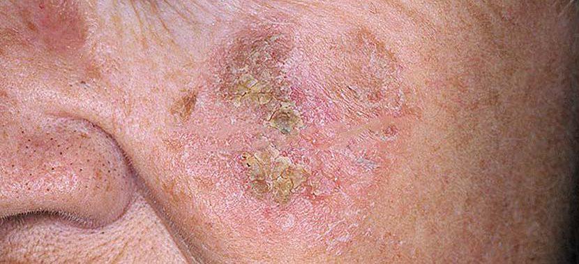 Актинический кератоз: симптомы, причины и лечение