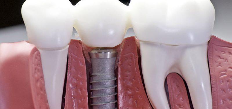 Лечение и протезирование зубов – какие методы существуют?