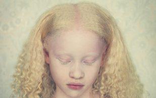 Определения у человека болезни альбинизм