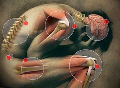 Диетологи подсказали, что есть при артрите