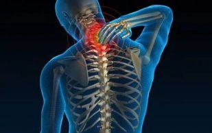 Остеохондроз шейного отдела: можно ли с ним бороться
