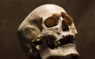 Ученые научились выращивать костные ткани лица
