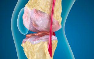Артроз коленного сустава: лечение и симптомы