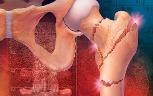 Симптомы остеопороза: болезни, разрушающие кости
