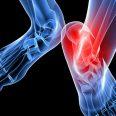 Ревматоидный полиартрит: признаки и лечение