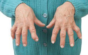 Артрит начинается в кишечнике