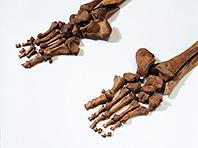 Генетическая предрасположенность к артриту была полезна для наших предков