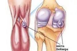 Бурсит коленного сустава и его виды