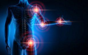 Правильная физкультура останавливает развитие артроза