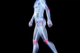 Как сохранить крепкие кости и суставы до старости