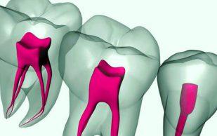 Пульпит зуба — симптомы и лечение