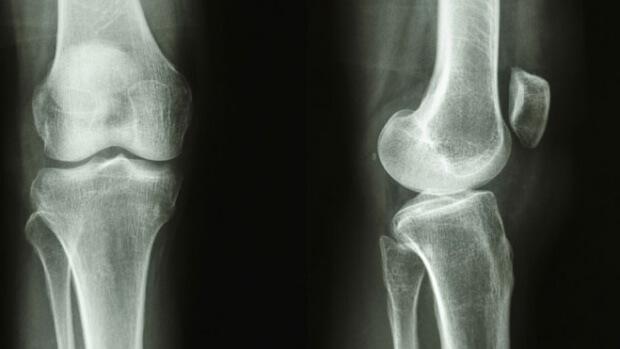 Новый препарат позволит быстрее восстановить кости