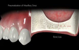 Процедура синуслифтинга наращивает объем кости для последующей имплантации зубов
