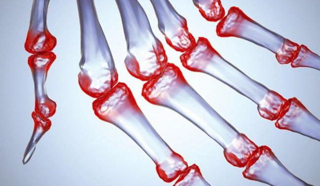 Ученые разработали гидрогель, который сможет победить страшную болезнь