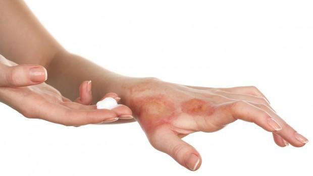 Склеродермия – причины, клиника, диагностика и лечение