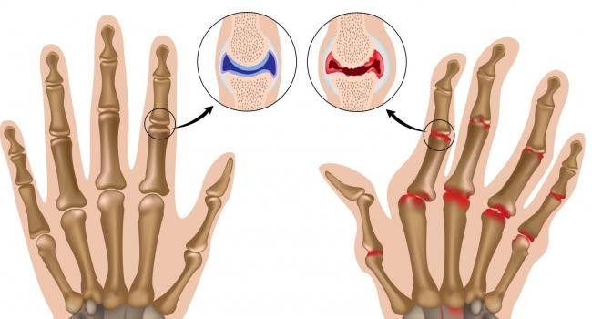 5 основных причин развития артрита у детей и молодых людей