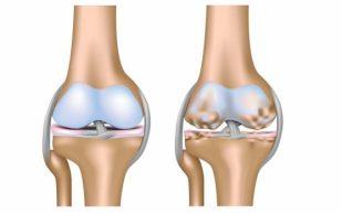 Знайте болезни в лицо: остеоартроз