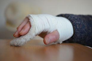 Омский врач изобрёл способ сократить сроки лечения после перелома плеча