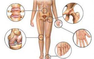 Лечим кости и суставы