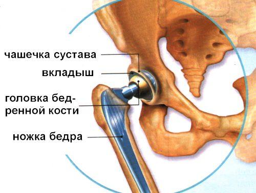 Кости, суставы и мышцы можно будет изготавливать из полиэтилена