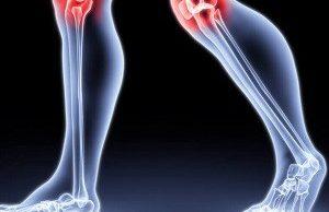 Укрепите кости и уменьшите боли в суставах с помощью натурального напитка!