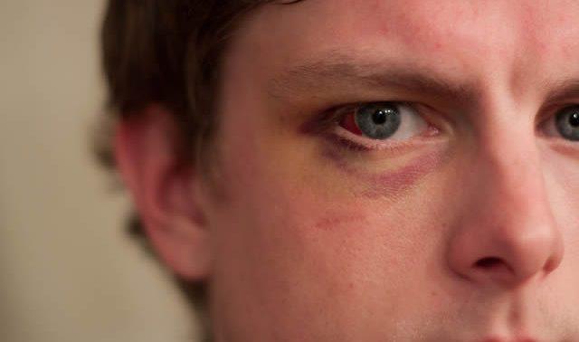 Повреждения и травмы глаз