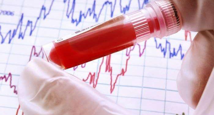 Анализ крови билирубин прямой повышен