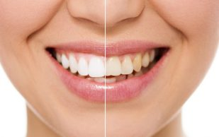 Виниры — новое слово в современной стоматологии