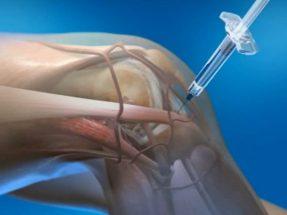 Природное лекарство для лечения воспаления суставов найдено