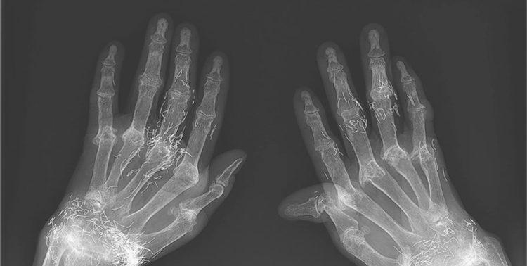 Золотые нити на рентгене: странный случай удивил врачей