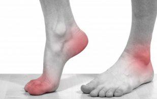 При отсутствии лечения подагрический артрит может привести к инвалидизации