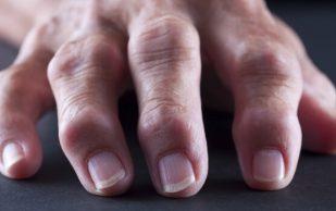 Ревматоидный полиартрит характеризуется необратимыми изменениями в хрящевой ткани суставов