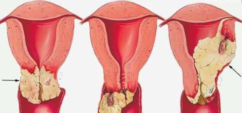Рак вагинальный