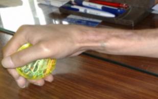 В Красноярском крае прооперированный мужчина 12 лет живёт без кости в руке