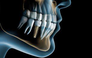 Виды костной пластики в имплантации