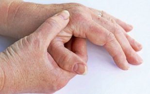 Менопауза делает ревматоидный артрит более мучительным