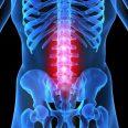 Остеохондроз поясничного отдела позвоночника характеризуется разнообразием симптомов