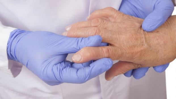 Ученые открыли белок, который поможет в лечении ревматоидного артрита