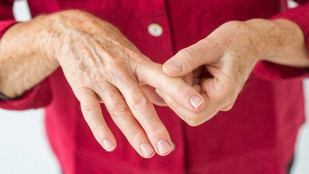 Парацетамол признали бесполезным при лечении артрита