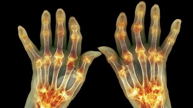 Мужчины с артритом в 2 раза чаще совершают самоубийство
