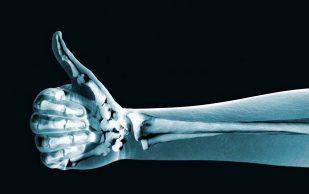 Новое лекарство позволит лечить переломы простыми уколами