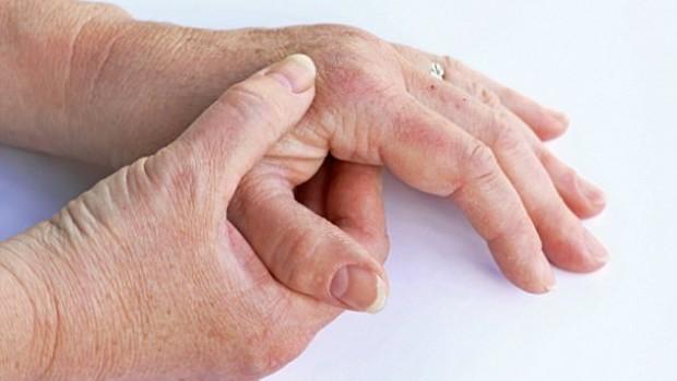 Изменения гормонов, вызванные менопаузой, ухудшают симптомы артрита