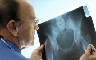 Эндопротезирование — современный метод восстановления суставов