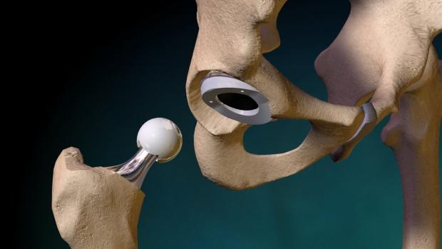 Использование эндопротезирования для успешного лечения патологии суставов
