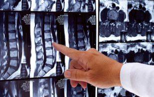 Секвестрированная грыжа позвоночника — причины возникновения, симптомы, диагностика и лечение