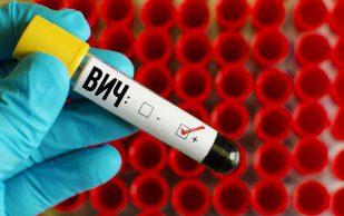 Названа причина хрупкости костей у ВИЧ-инфицированных