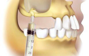 Синус-лифтинг в стоматологии
